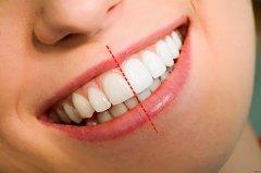 给牙齿一个冲浪SPA,守护健康的第一步——心诺X809洗